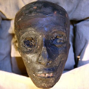 king tutankhamen how did he die Tutankhamun may well have died of malaria 'malaria and weak bones' may have killed he said it was possible that the king died from malaria, but he.